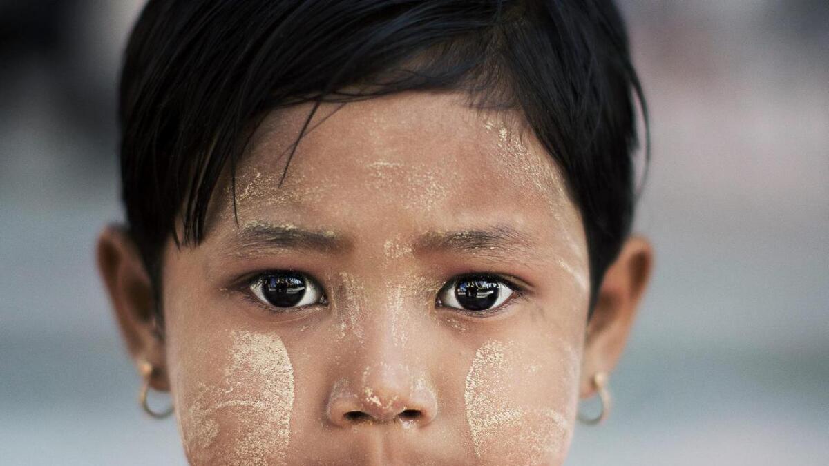 Thanaka er ein gul krem som mange brukar mot kraftig sol. Kremen som er laga av bark blir også brukt reint kosmetisk.